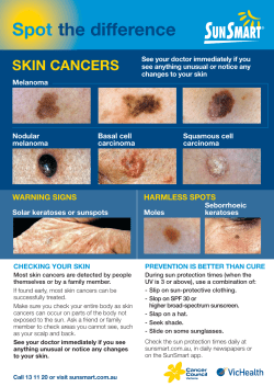 Spot the difference SKIN CANCERS WARNING SIGNS
