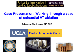 Case Presentation: Walking through a case of epicardial VT ablation
