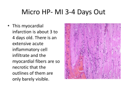 Micro HP- MI 3-4 Days Out