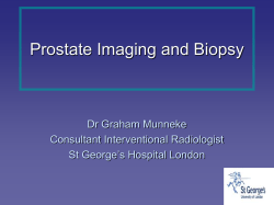 Prostate Imaging and Biopsy Dr Graham Munneke Consultant Interventional Radiologist