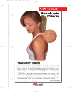 "PATIENT TEACHING AID ""Chicken Skin"" Condition Keratosis Pilaris"