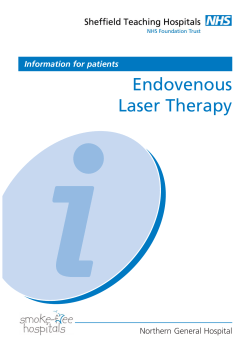 Endovenous Laser Therapy Northern General Hospital Information for patients