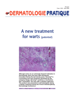 A new treatment for warts (patented)
