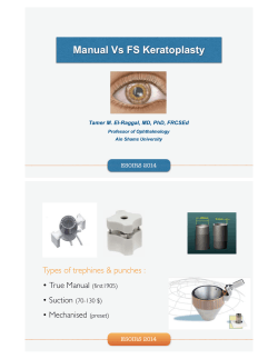 Manual Vs FS Keratoplasty Types of trephines & punches :  •