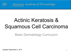 Actinic Keratosis & Squamous Cell Carcinoma Basic Dermatology Curriculum Updated September 5, 2011