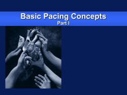 Basic Pacing Concepts Part I