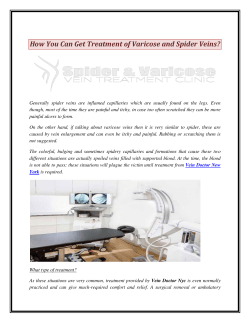 How You Can Get Treatment of Varicose and Spider Veins