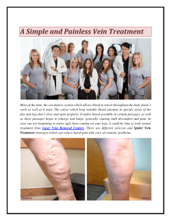A Simple and Painless Vein Treatment