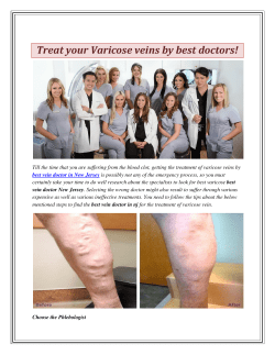 Treat your Varicose veins by best doctors