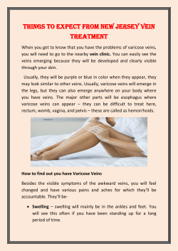Things to expect from New Jersey Vein Treatment
