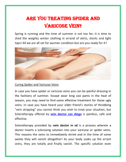 Are You Treating Spider and Varicose Vein