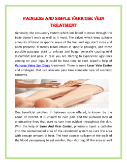 Painless and simple Varicose Vein Treatment 1