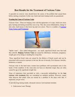 Best Results for the Treatment of Varicose Veins