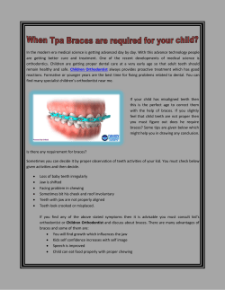 When Tpa Braces are required for your child