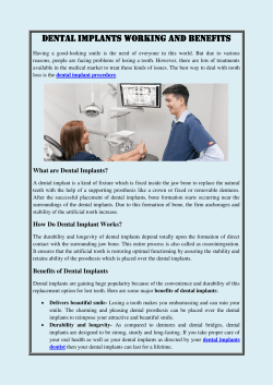 DENTAL IMPLANTS- WORKING AND BENEFITS