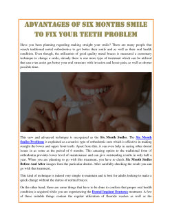 Advantages of Six Months Smile To Fix your Teeth Problem
