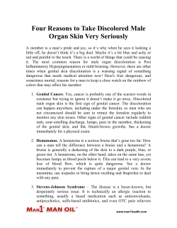 Four Reasons to Take Discolored Male Organ Skin Very Seriously